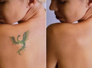 Tattoo Removal Without Laser